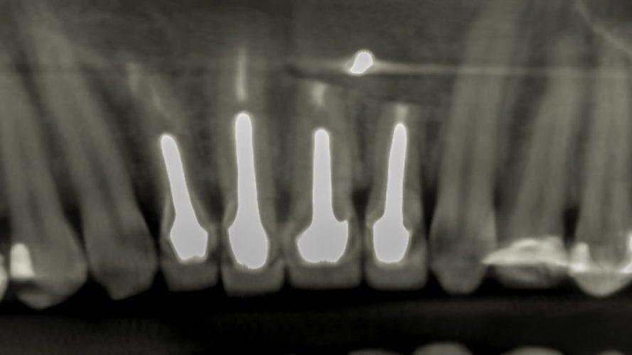 Ryc. 22. Zamknięcie tkanek miękkich i szycie monofilamentem 5-0 pozwoli na optymalne gojenie.