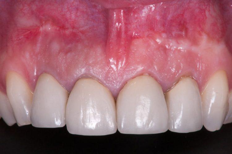 Ryc. 27. Porównanie sytuacji przed leczeniem i po 10 miesiącach w pozycji zęba 22. Stabilny i przebudowany biomateriał może w takiej sytuacji stanowić dobrą podstawę do implantacji natychmiastowej.