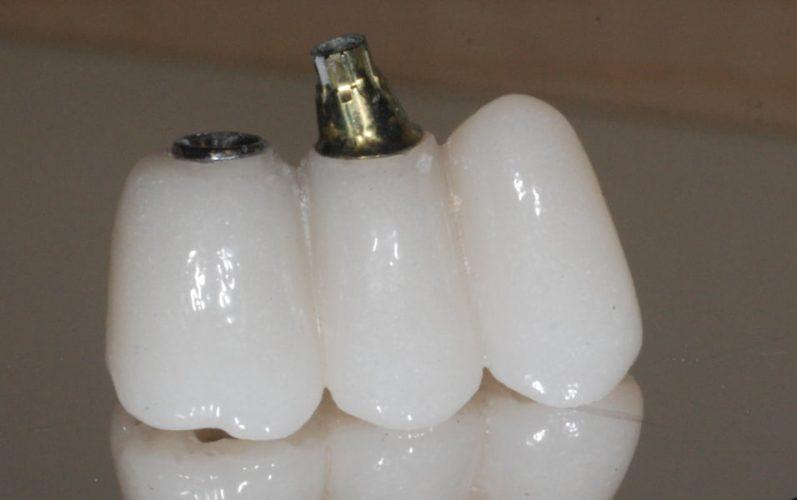 Ryc. 123. W ustach pacjenta do jednego implantu jest zamontowany uniabutment (połączenie zewnętrzne).