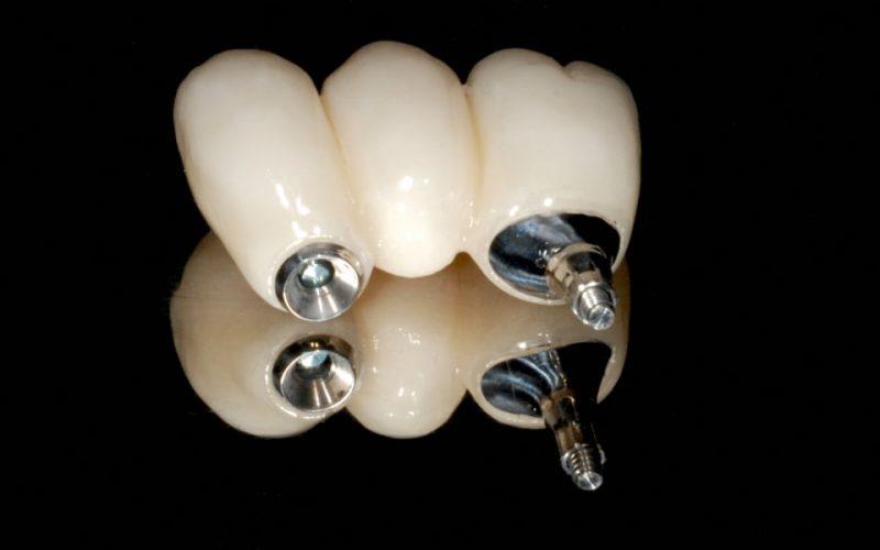 Ryc. 126. Gdy wykorzystuje się jedno połączenie zewnętrzne, nie ma blokady i prężenia przy wprowadzaniu łącznika wewnątrz implantów zblokowanych (dotyczy to tylko prac przykręcanych).