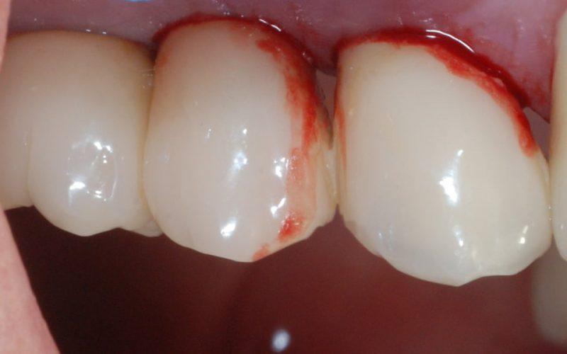 Ryc. 44. Kwadrant I – nowy stan zapalny wokół mezjalnej powierzchni implantu w projekcji 14.