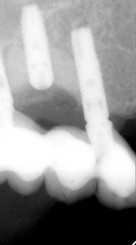 Ryc. 47. Kwadrant I – kontrola RVG po wszczepieniu implantu w projekcji 15. Most na implantach zostanie zmieniony na solo korony (zdjęcie RVG do ryciny 36).