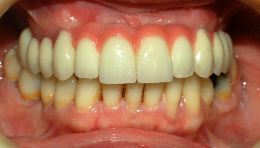 Ryc. 65. Pierwotna praca osadzona na implantach. Dobra estetyka.