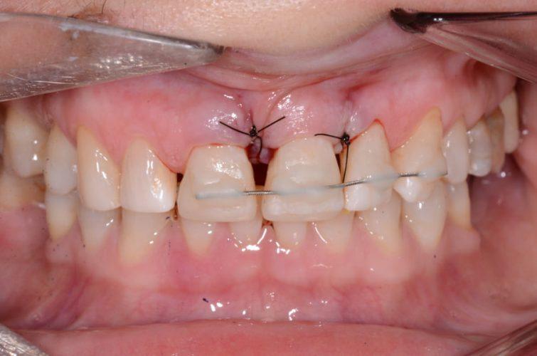 Ryc. 15. Tymczasowe unieruchomienie zęba 21 (ruchomość II stopnia po zabiegu chirurgicznym) za pomocą drutu do retencji naklejonego na zęby 11–23.