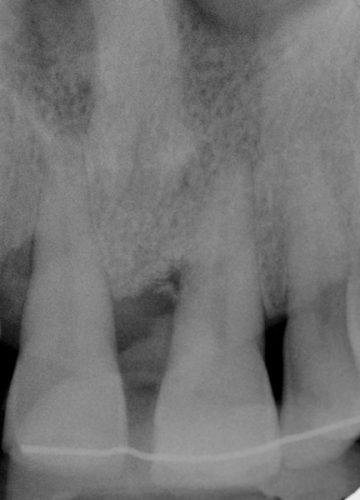 Ryc. 27. Zdjęcie radiologiczne ubytku 21 – 6 miesięcy po zabiegu GTR. Widoczne częściowe wypełnienie ubytku tkanką kościopodobną oraz fragment niezintegrowanego biomateriału ksenogennego.
