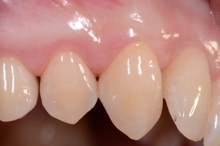 Ryc. 29. Przygotowanie do zabiegu regeneracyjnego w okolicy zęba 14, stan tkanek przed zabiegiem.