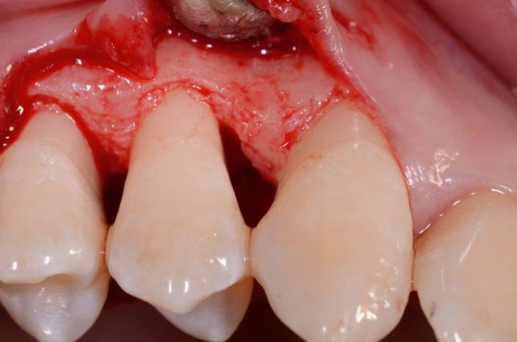 Ryc. 31. Widok ubytku śródkostnego po odpreparowaniu płata śluzówkowo-okostnowego i oczyszczeniu go z tkanki ziarninowej.