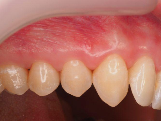 Ryc. 39. Stan tkanek miękkich 6 miesięcy po zabiegu sterowanej regeneracji tkanek.