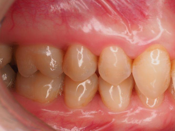 Ryc. 41. Stabilny stan tkanek miękkich 1 rok po zabiegu sterowanej regeneracji tkanek.