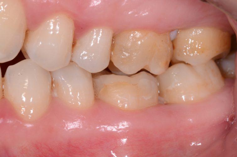 Ryc. 47. Okolica zęba 36, stan przedzabiegowy.
