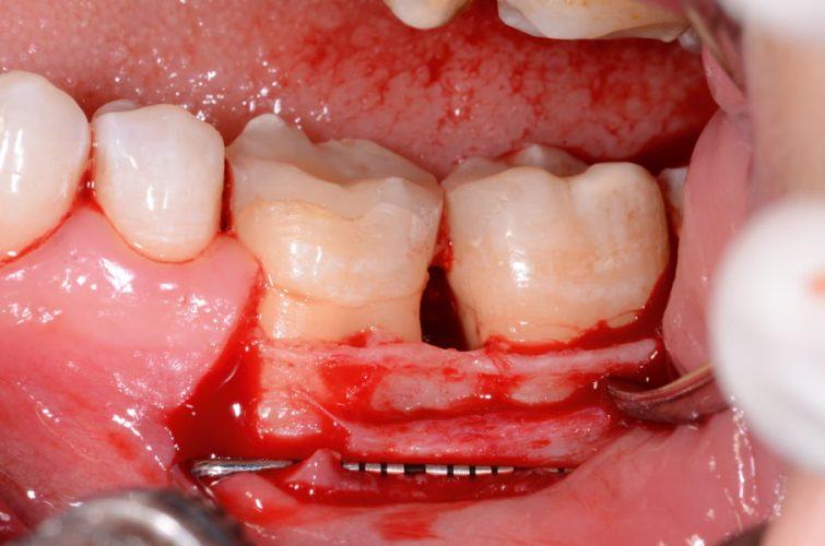 Ryc. 49. Odpreparowanie płata śluzówkowo-okostnowego z pojedynczym cięciem pionowym. Stan po oczyszczeniu ubytku z tkanki ziarninowej.
