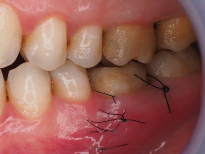 Ryc. 54. Niezaburzone gojenie tkanek tydzień po zabiegu.