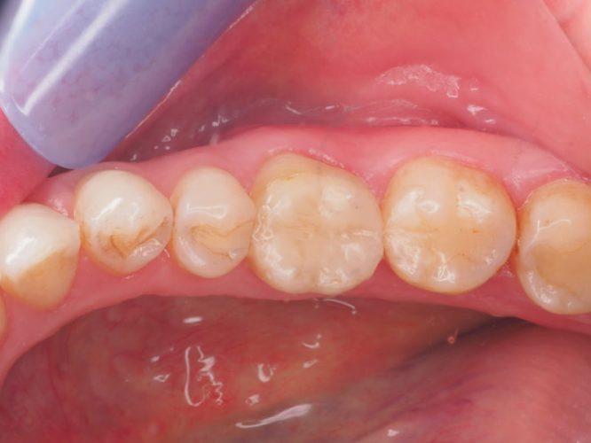 Ryc. 60. Widok okluzyjny tkanek 6 miesięcy po zabiegu.