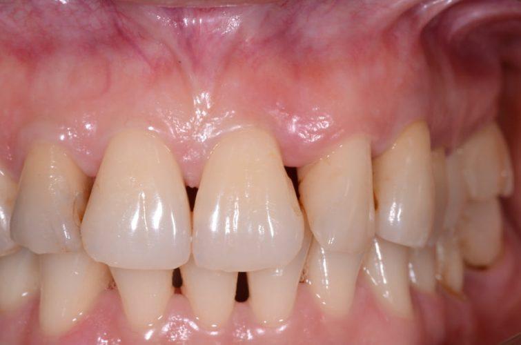 Ryc. 70. Okolica zęba 21, stan przedzabiegowy.
