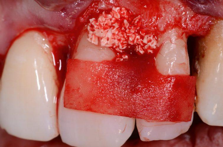 Ryc. 78. Ubytek wypełniony materiałem ksenogennym przed ustabilizowaniem błony kolagenowej.