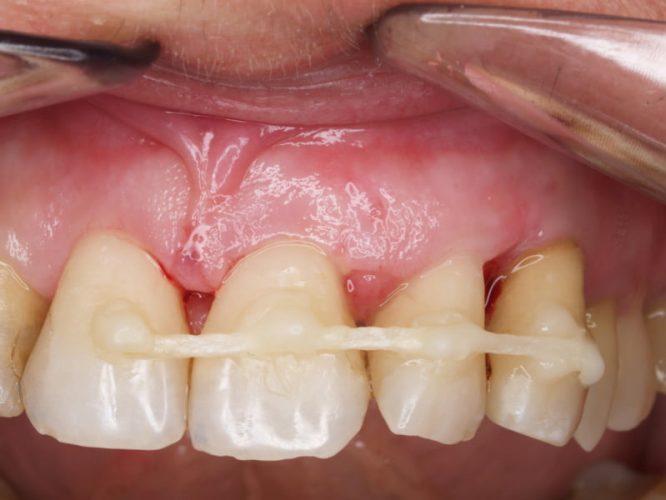 Ryc. 86. Obraz gojenia tkanek 2 tygodnie po zabiegu. Widoczne cięcia oszczędzające brodawki. Stan bezpośrednio po zdjęciu szwów.