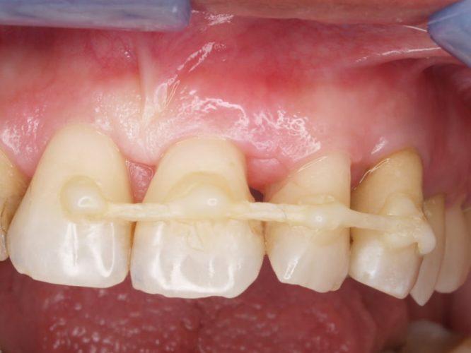 Ryc. 89. Obraz gojenia tkanek 2 miesiące po zabiegu.