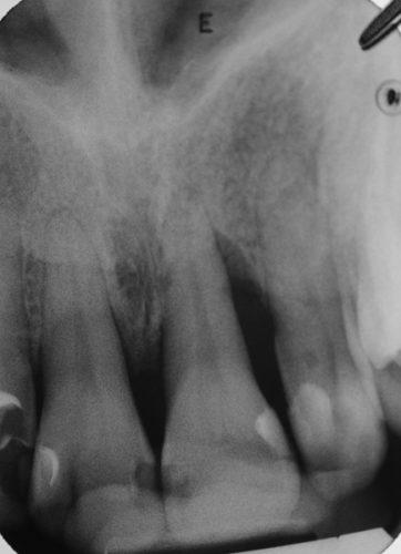 Ryc. 96. Zdjęcie radiologiczne obrazujące regenerowany ubytek 21.