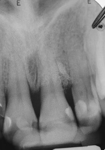 Ryc. 98. Zdjęcie radiologiczne obrazujące wypełnienie ubytku, wykonane 1 rok po zabiegu.
