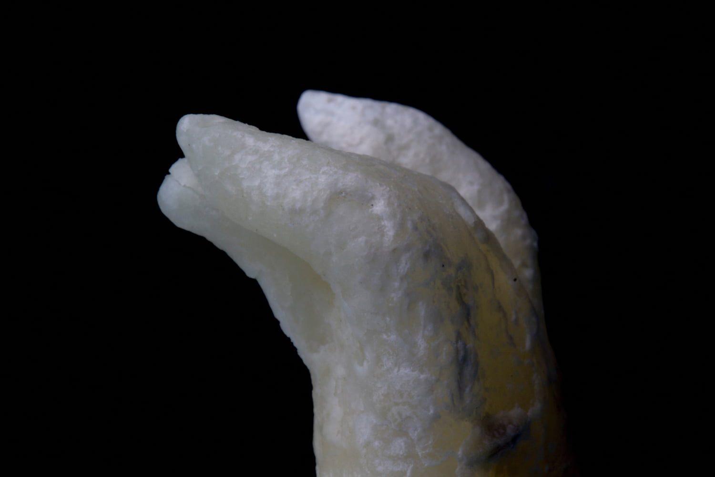 Ryc. 1. Ząb trzonowy górny pierwszy. Widoczna krzywizna korzenia mezjalnego o krótkim promieniu.