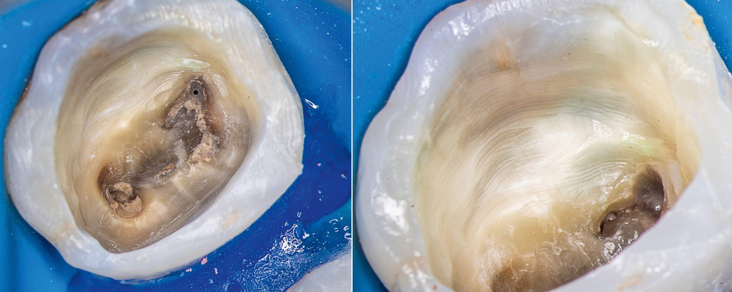 Przypadek 1 | Ryc. 3. Widok komory zęba po usunięciu wypełnienia. Widoczny materiał w ujściach kanałów MB1 i MB2. Po wypłukaniu widoczne ujście kanału MB1 oraz cieśń przy ujściu kanału MB2.