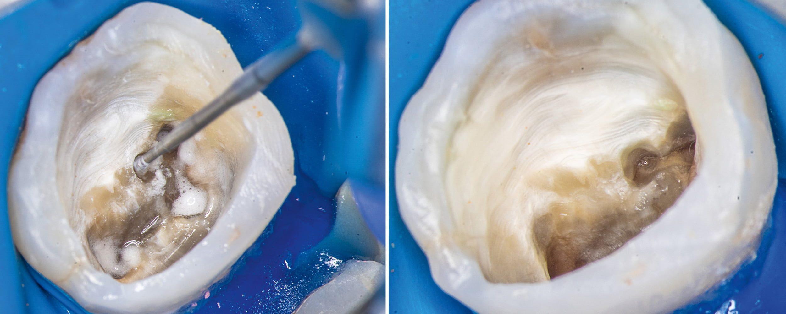 Przypadek 1 | Ryc. 4. Opracowanie wiertłem różyczkowym nawisu zębinowego nad kanałem MB2.