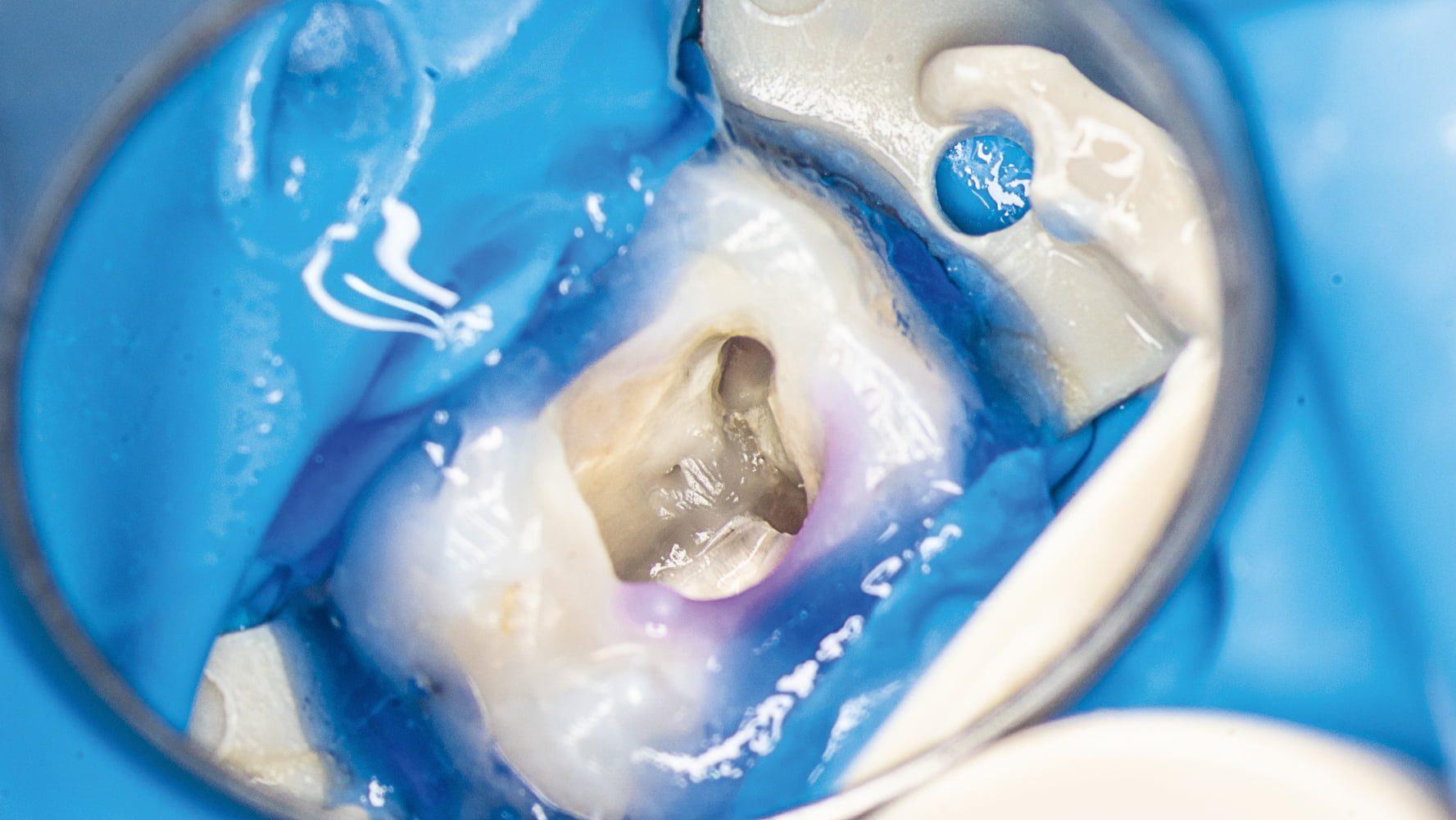 Przypadek 2 | Ryc. 7. Widok komory zęba po opracowaniu ujść kanałów MB1 i DB. Widoczny nawis zębinowy nad ujściem kanału MB2.