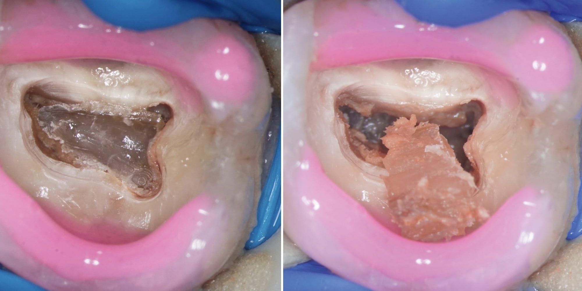 Przypadek 3 | Ryc. 15. Widok po otwarciu komory. Zębiniak został usunięty.