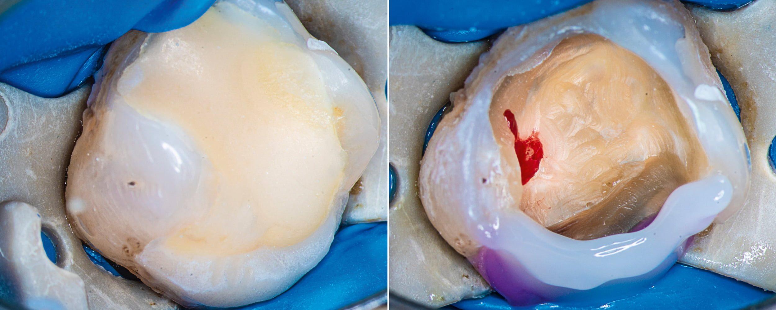 Przypadek 4 | Ryc. 19. Widok zęba przed rozpoczęciem procedury. Po usunięciu wypełnienia i doczyszczeniu widoczny zraniony róg miazgi.