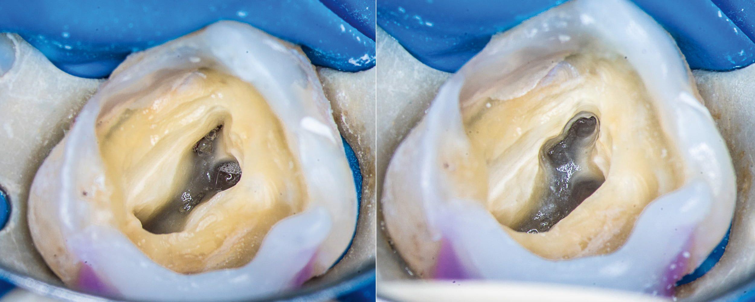 Przypadek 4 | Ryc. 20. Widok komory po usunięciu miazgi. Widoczna cieśń łącząca ujścia kanałów MB1 i MB2.